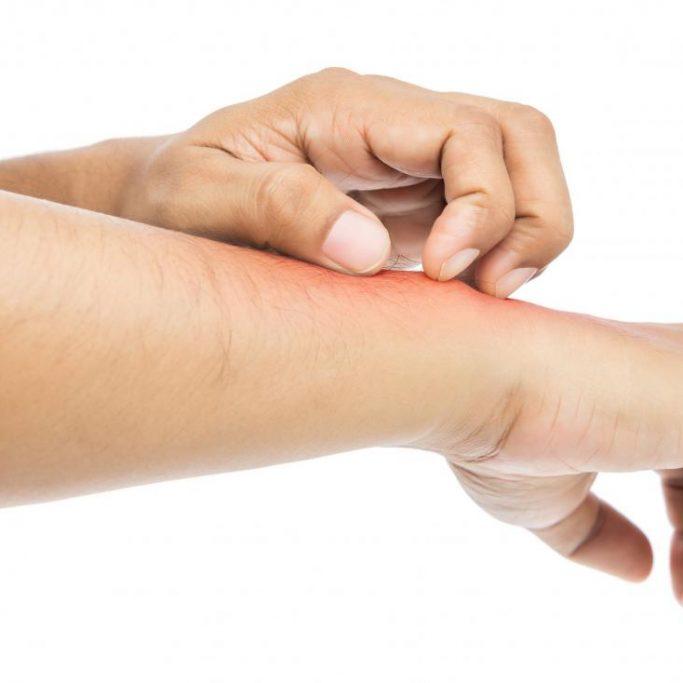 scratching-wrist